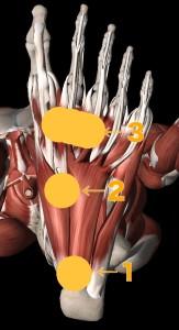 足底筋膜炎 好発部位画像
